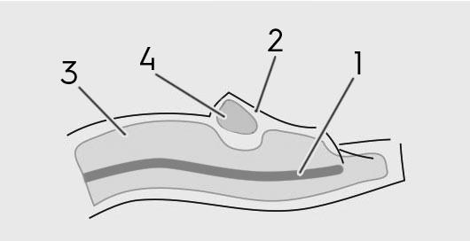 siliconen pop vier lagen